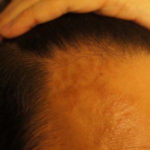 帯状疱疹(ヘルペス)になる。おでこに茶色いシミ、おでこが引っ張られるような痛み