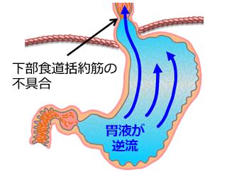gyakuryuusei_003_3