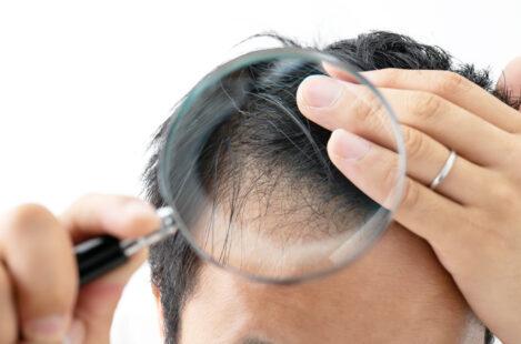ミノキシジルの初期脱毛について aga対策